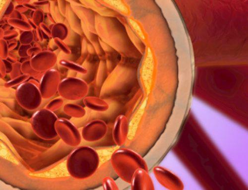 Toxische Metaboliten beeinflussen Entwicklung der Atherosklerose