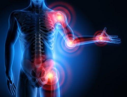 Lebensmittel gegen Gelenkschmerzen