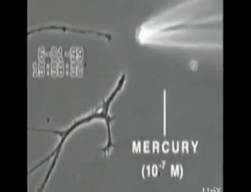 Zerstörung von Gehirnzellen durch Quecksilber unter einem Elektronenmikroskop sichtbar gemacht.